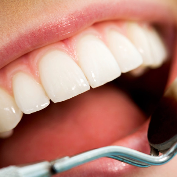 ORAL CARE AND HEALTH IN LONG TERM CARE