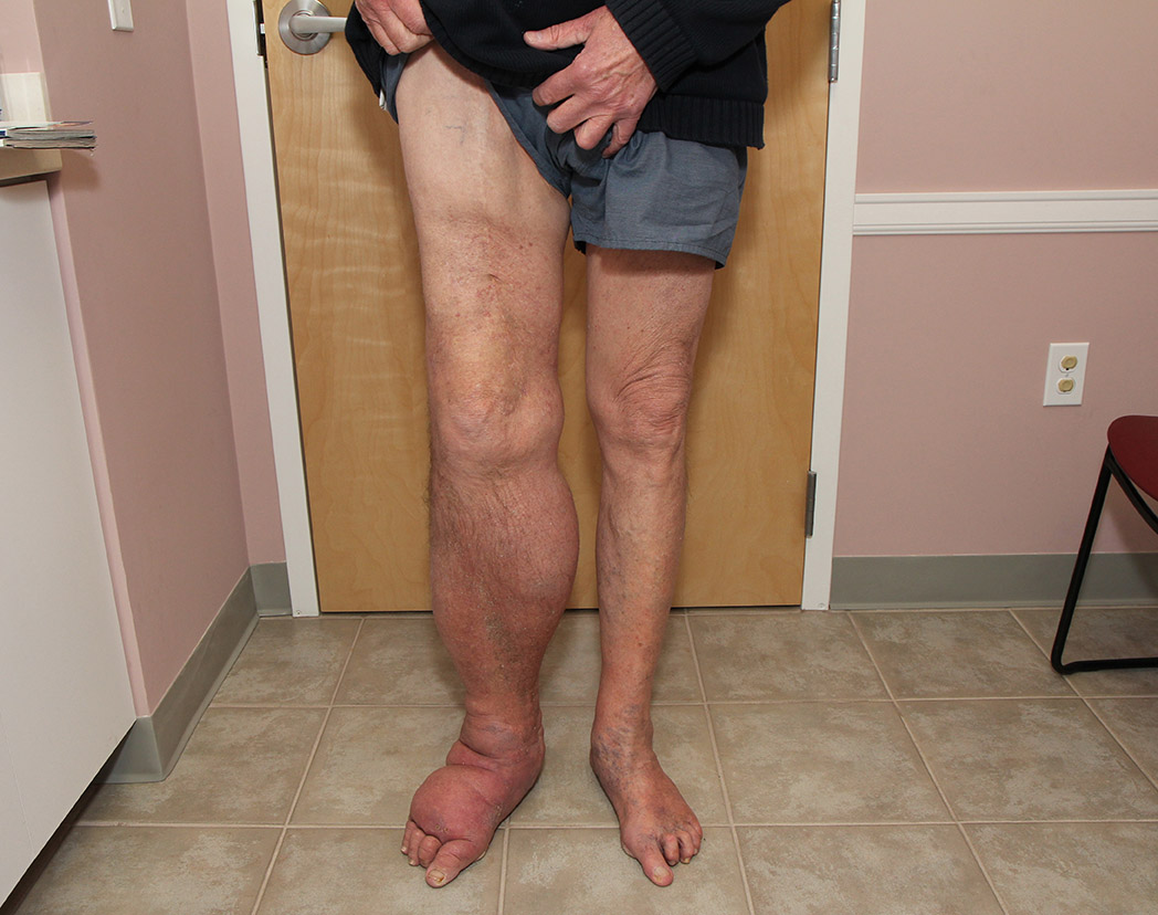 Swelling (edema) of the right leg and foot